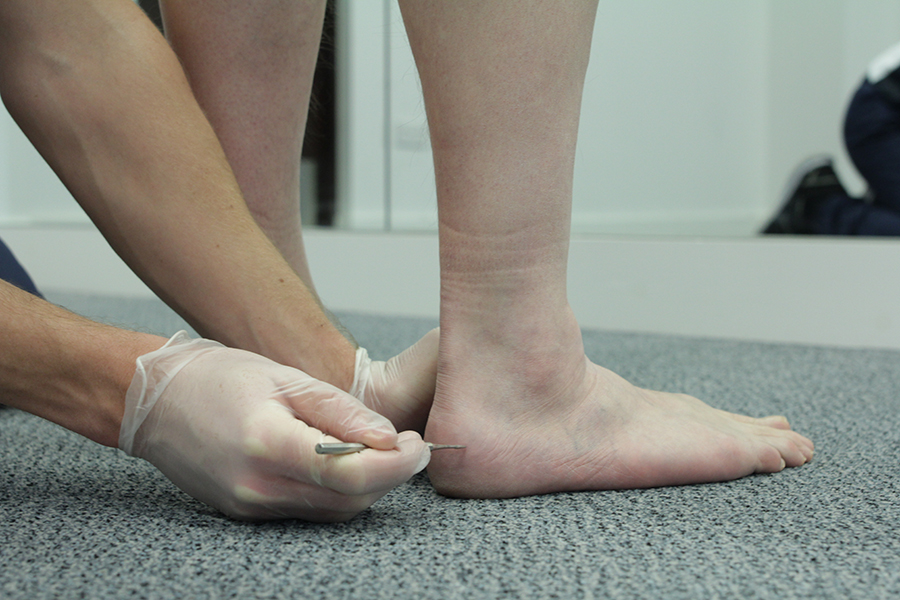 Specialist Podiatrist in Manchester and Liverpool