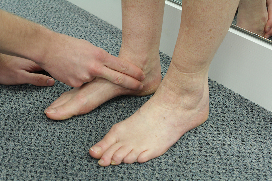Stress Fracture Of The Medial Malleoulus The Ankle Biomechanical Problems What We Treat Chiropody Co Uk Leading Chiropodist Podiatrists In Manchester And Liverpool