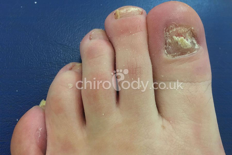 Toenail reconstruction | Cosmetic podiatry | Treatments | Chiropody ...