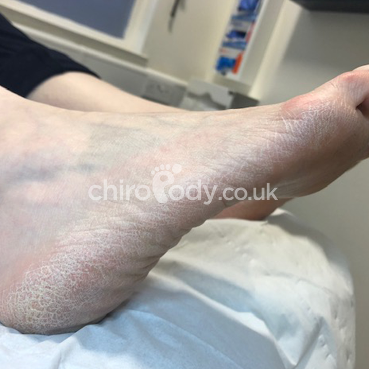 A foot before treatment.
